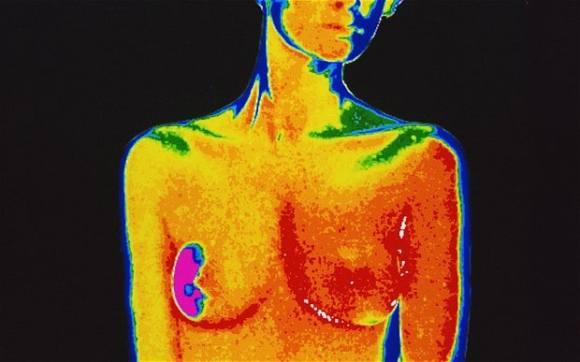 Breast-Cancer_2517769b